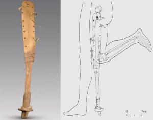 La protesi con zoccolo di cavallo risalente a circa 2200 anni fa recentemente ritrovata in Cina