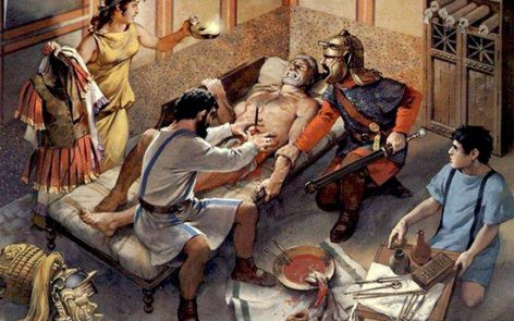 Dal chirurgo nell'Antica Roma. I calcoli renali venivano curati con bizzarre terapie