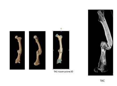 Alcune delle ossa degli scheletri di antichi romani analizzate. Non erano pochi i malanni di cui i Romani dell'epoca soffrivano